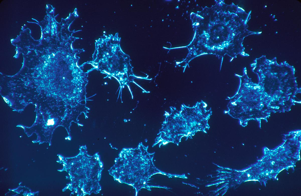 Cancer cells in culture from human connective tissue, illuminated by darkfield amplified contrast, at a magnification of 500x
